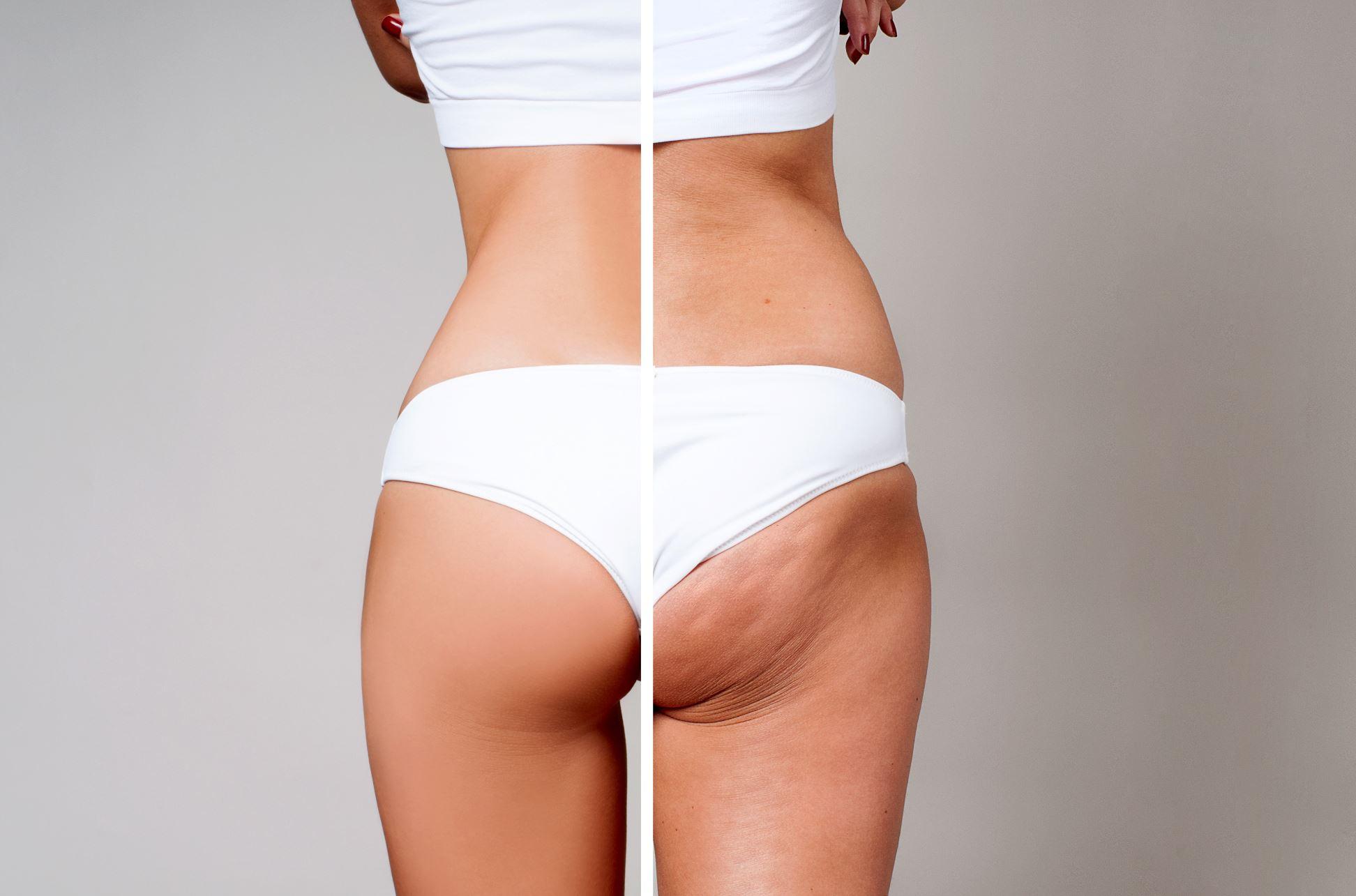 Cellulite        Besenreißer